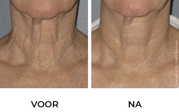 Resultaat Ultherapie Hals